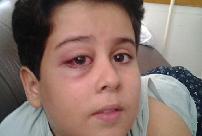 """Mãe pede desesperada ajuda para realização de cirurgia de menino de oito anos que tem caroço no olho.""""Ele pode perde a visão, ajude""""."""