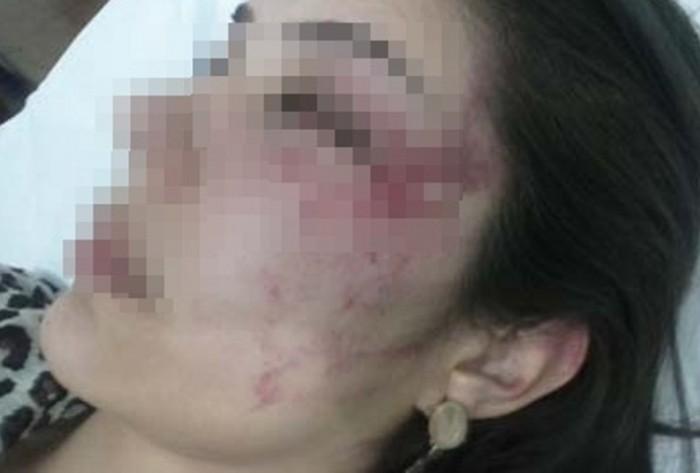 Mulher é agredida com pedradas na cabeça e jogada às margens de rodovia federal no Sertão do Estado. Foto!