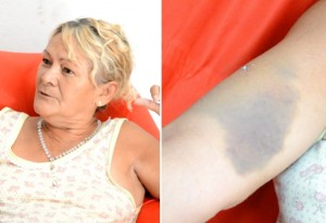 Dona Maria do Socorro mostra hematoma no braço